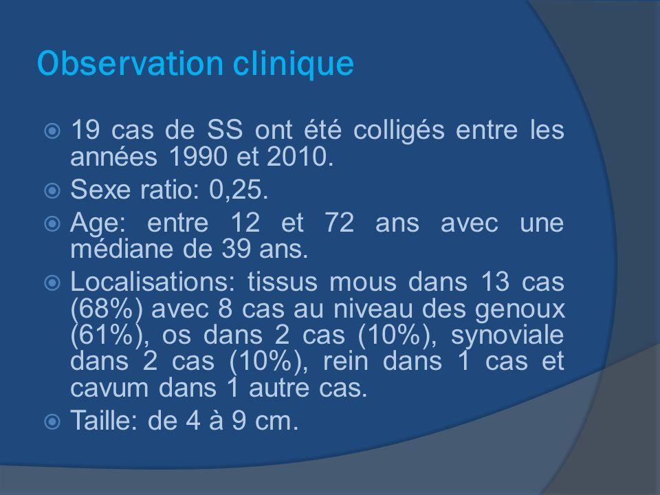 Observation clinique 19 cas de SS ont été colligés entre les années 1990 et 2010. Sexe ratio: 0,25.