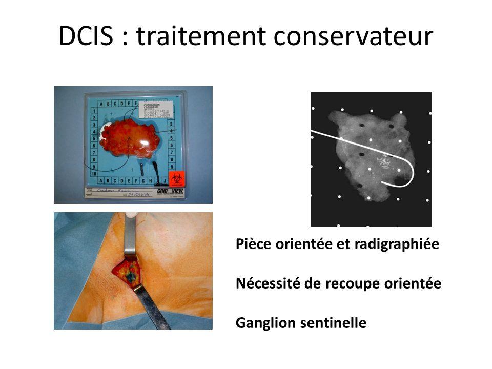 DCIS : traitement conservateur