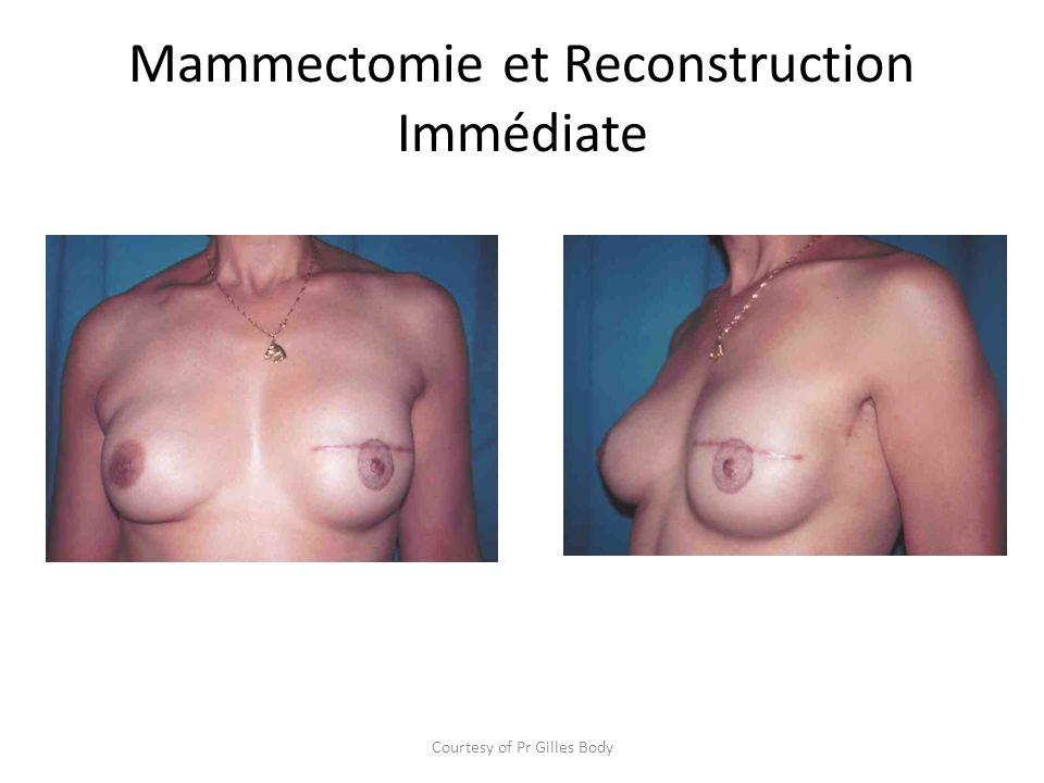 Mammectomie et Reconstruction Immédiate