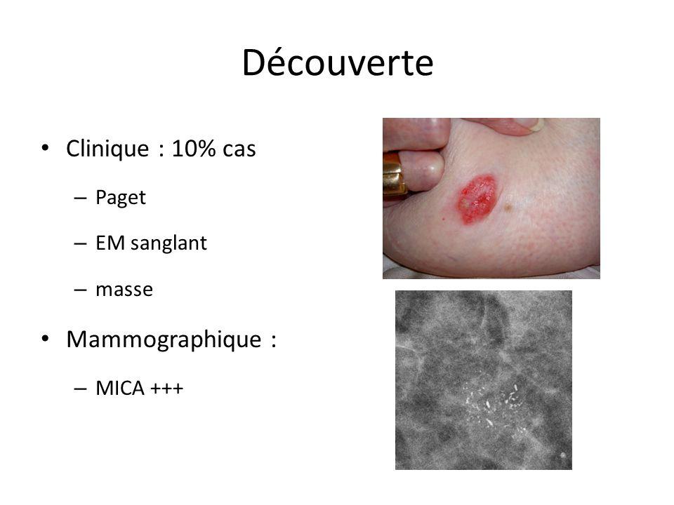 Découverte Clinique : 10% cas Mammographique : Paget EM sanglant masse