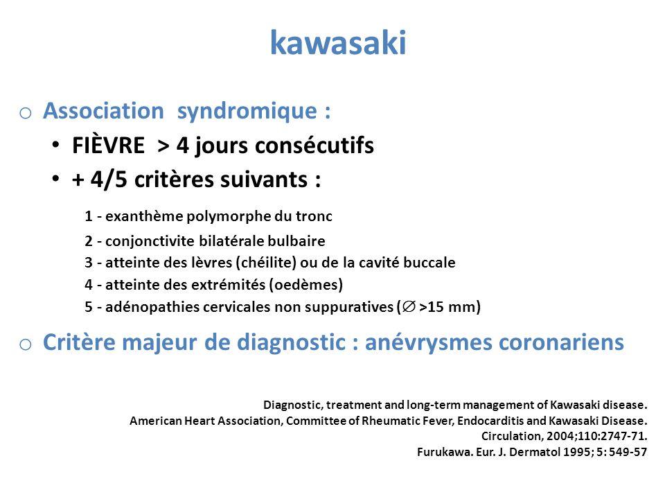 kawasaki Association syndromique : FIÈVRE > 4 jours consécutifs