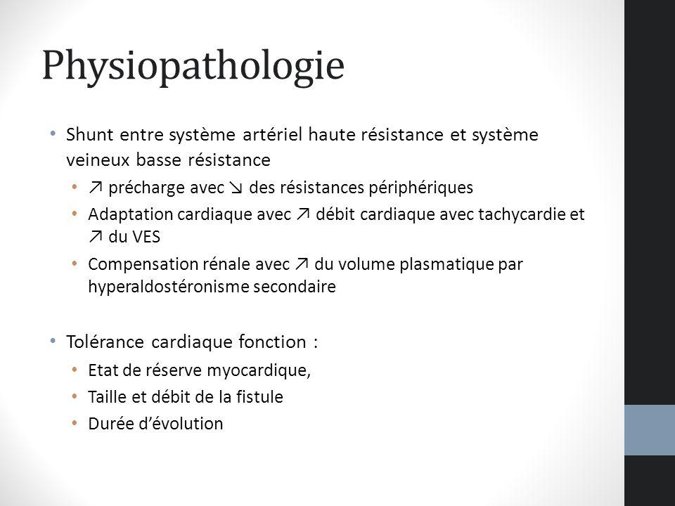 Physiopathologie Shunt entre système artériel haute résistance et système veineux basse résistance.