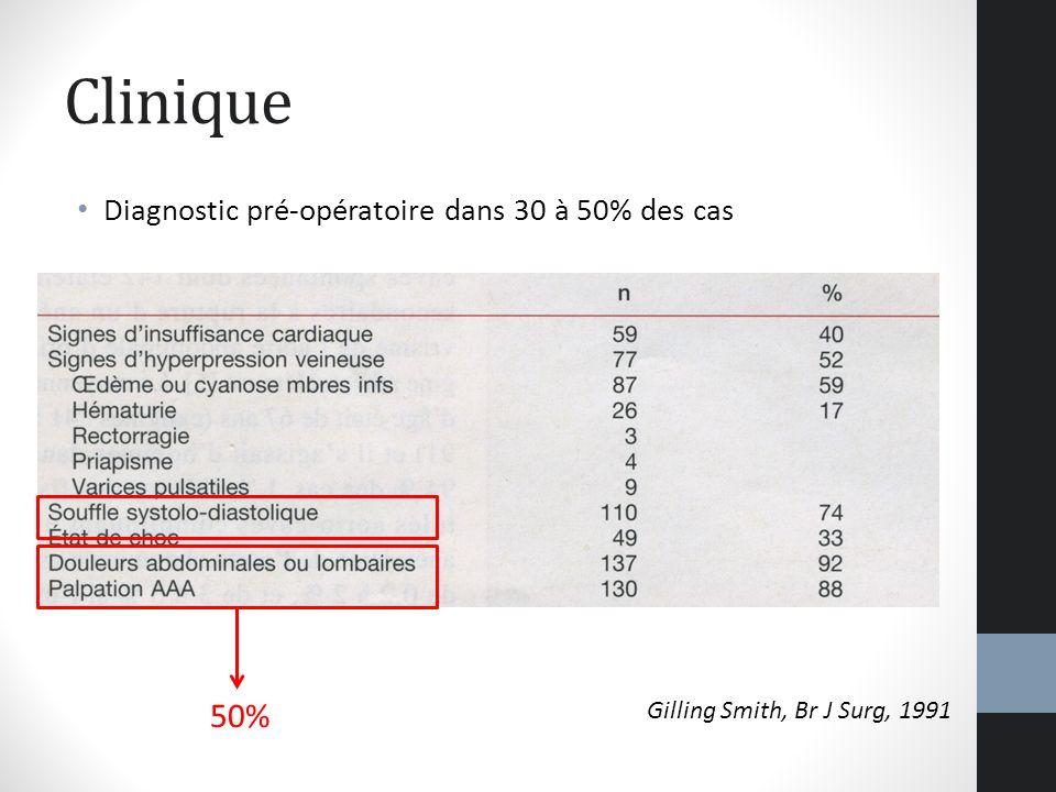 Clinique Diagnostic pré-opératoire dans 30 à 50% des cas 50%