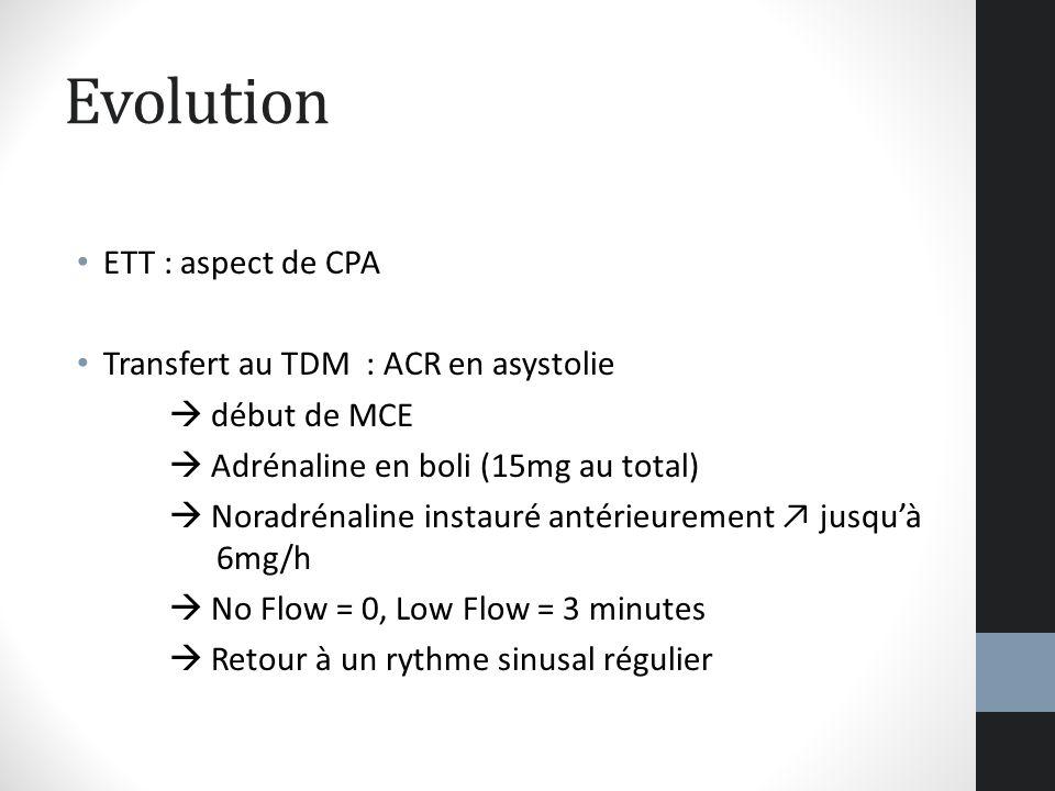 Evolution ETT : aspect de CPA Transfert au TDM : ACR en asystolie