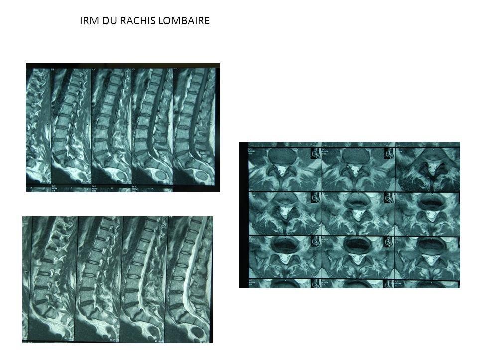IRM DU RACHIS LOMBAIRE