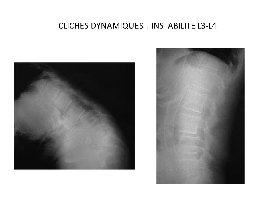CLICHES DYNAMIQUES : INSTABILITE L3-L4