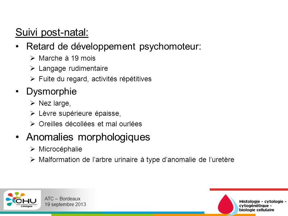 Anomalies morphologiques