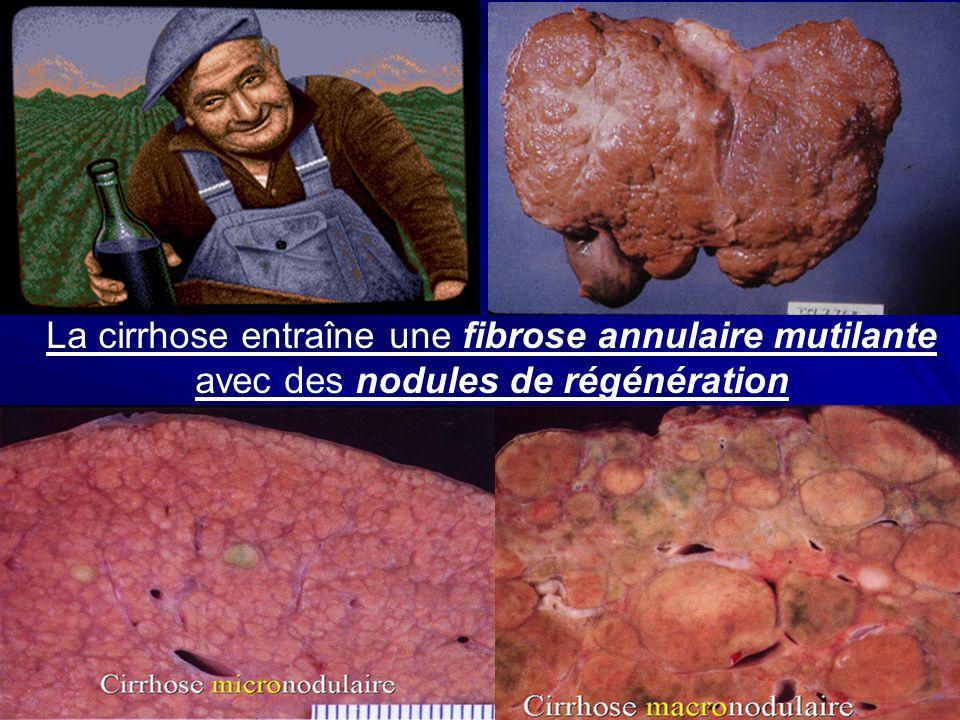 La cirrhose entraîne une fibrose annulaire mutilante avec des nodules de régénération