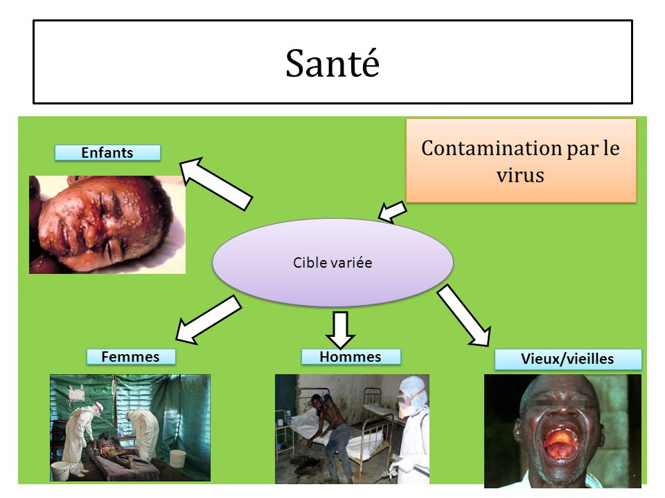 Contamination par le virus