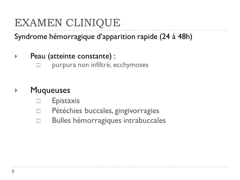 EXAMEN CLINIQUE Muqueuses
