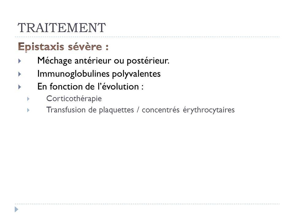 TRAITEMENT Epistaxis sévère : Méchage antérieur ou postérieur.
