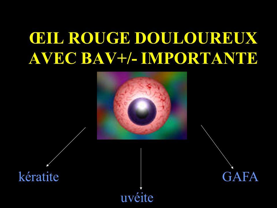 ŒIL ROUGE DOULOUREUX AVEC BAV+/- IMPORTANTE