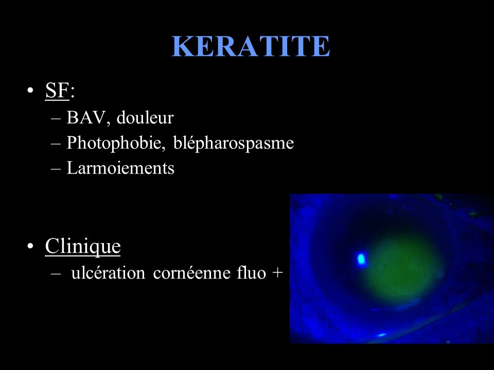 KERATITE SF: Clinique BAV, douleur Photophobie, blépharospasme