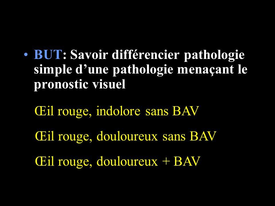 BUT: Savoir différencier pathologie simple d'une pathologie menaçant le pronostic visuel