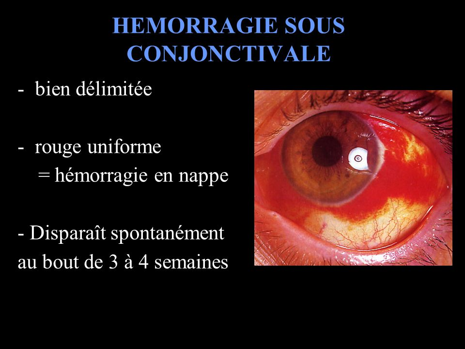 HEMORRAGIE SOUS CONJONCTIVALE