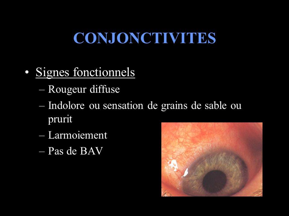 CONJONCTIVITES Signes fonctionnels Rougeur diffuse
