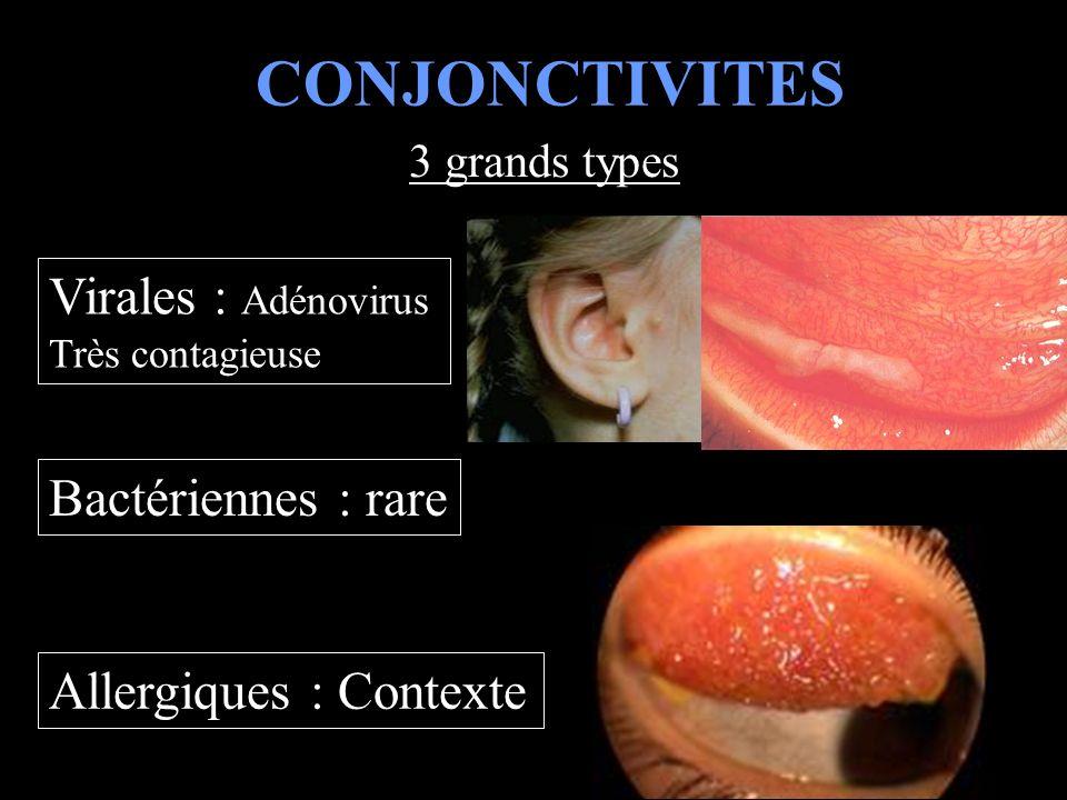 CONJONCTIVITES Virales : Adénovirus Bactériennes : rare