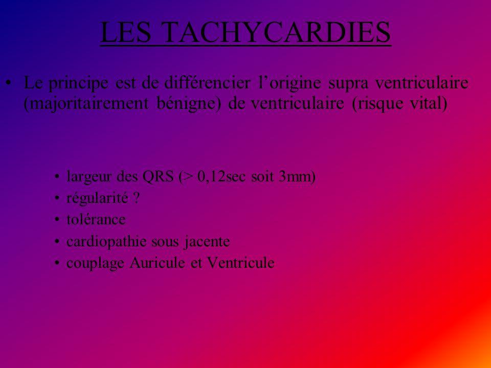LES TACHYCARDIES Le principe est de différencier l'origine supra ventriculaire (majoritairement bénigne) de ventriculaire (risque vital)
