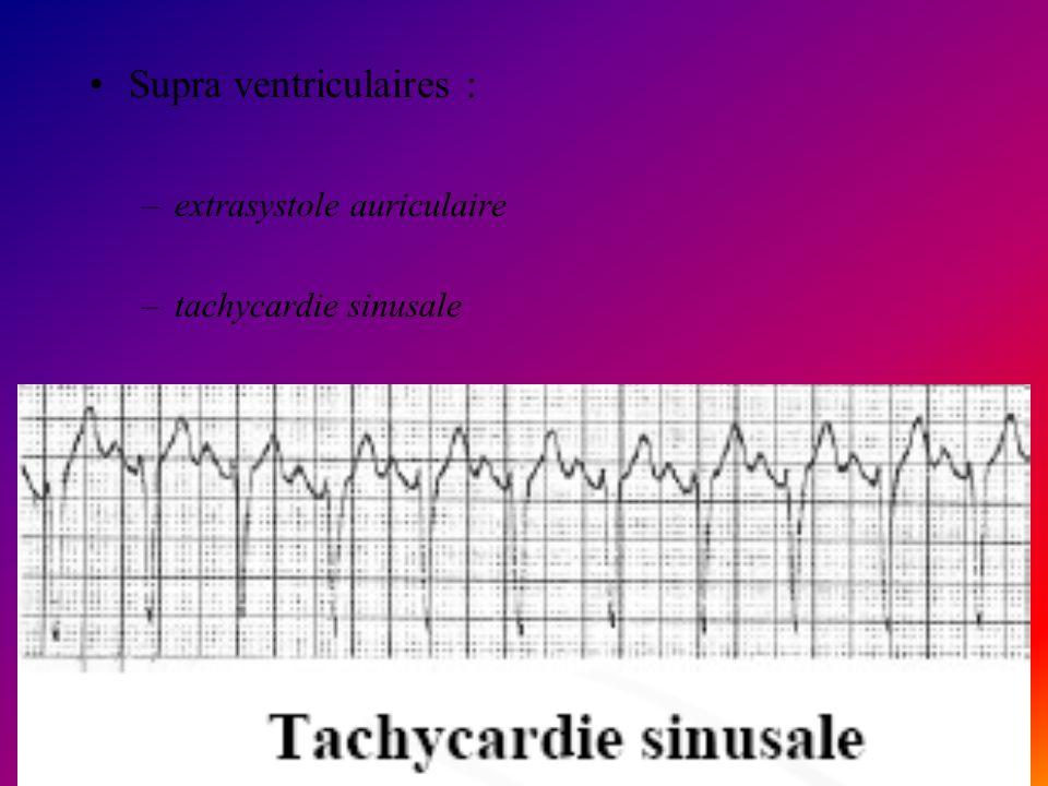 Supra ventriculaires :