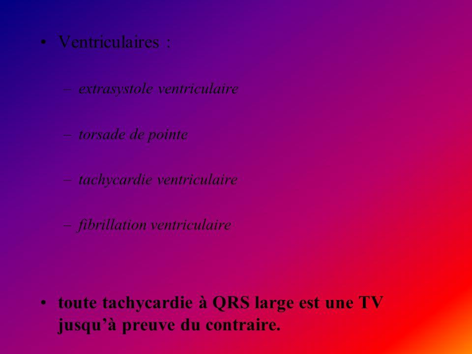 toute tachycardie à QRS large est une TV jusqu'à preuve du contraire.