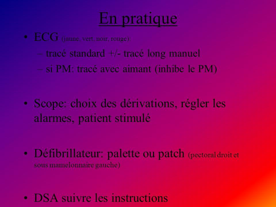 En pratique ECG (jaune, vert, noir, rouge):