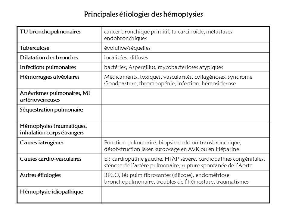 Principales étiologies des hémoptysies