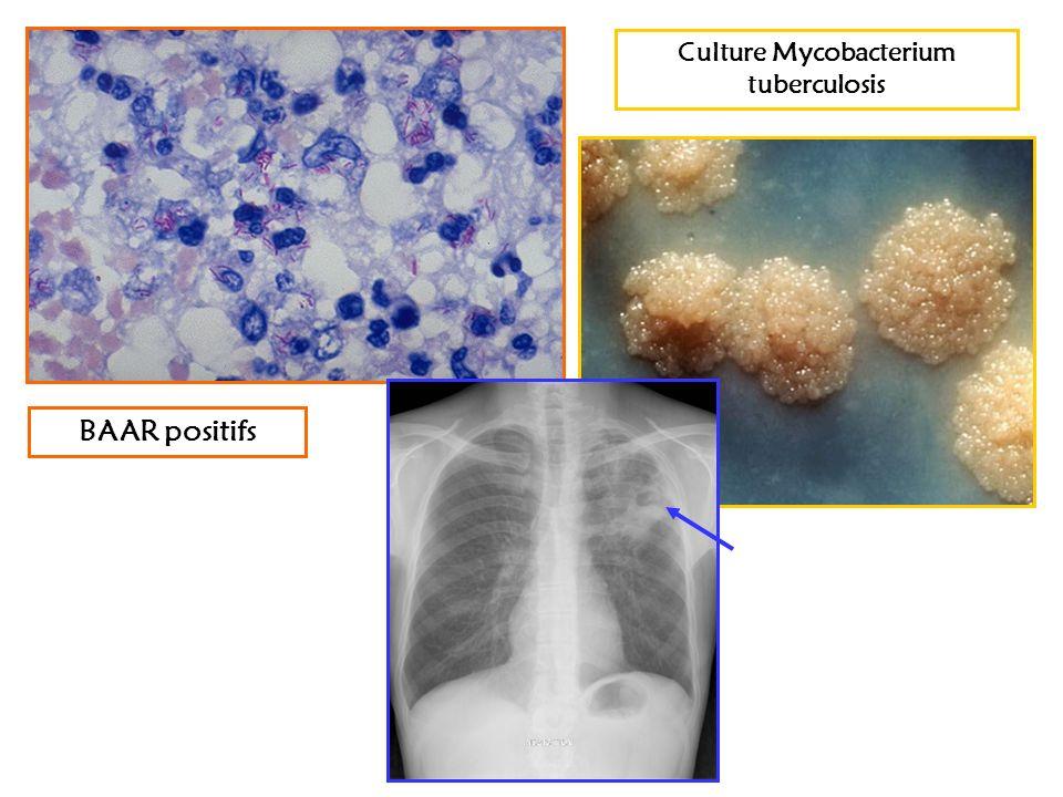 Culture Mycobacterium tuberculosis