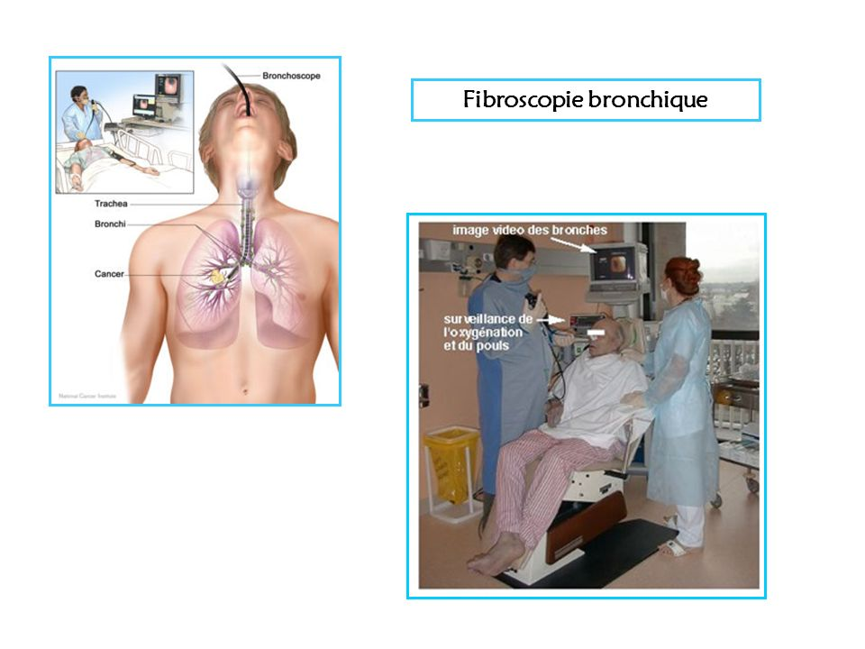 Fibroscopie bronchique