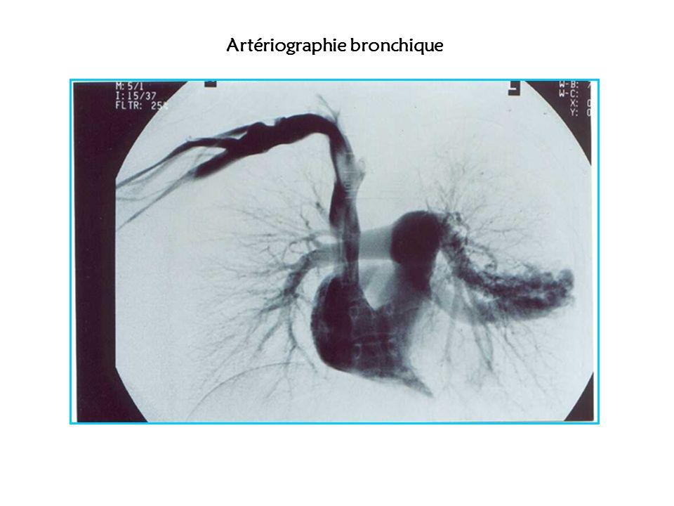 Artériographie bronchique