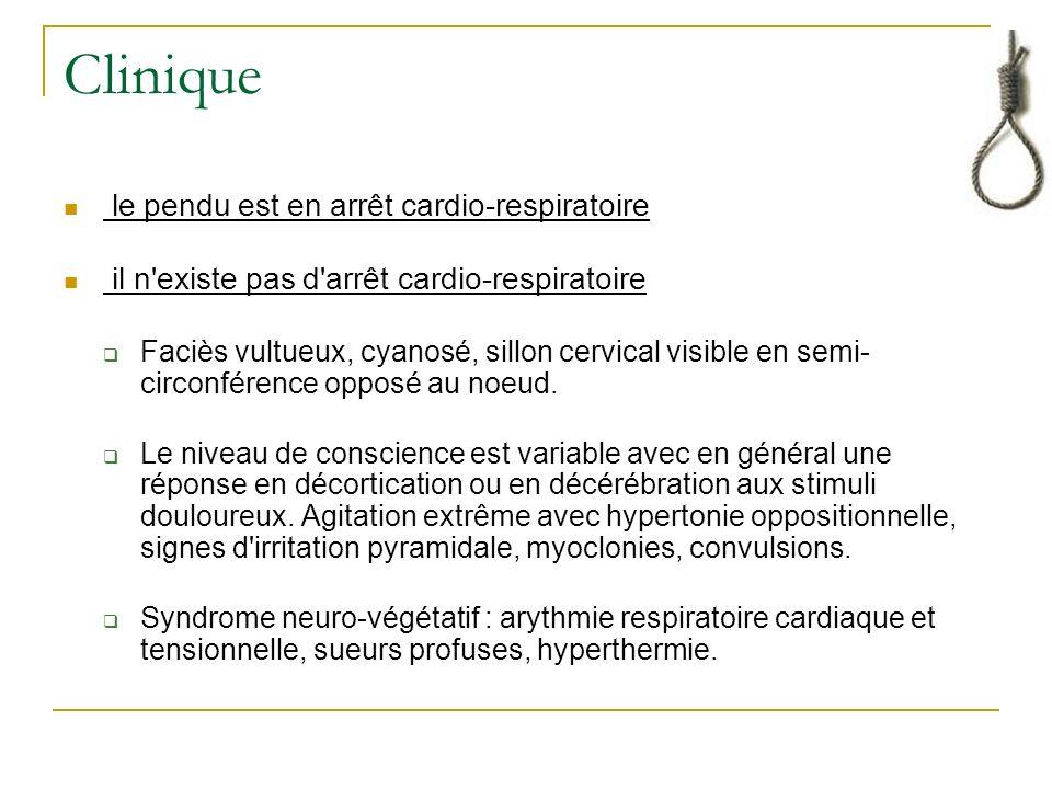 Clinique le pendu est en arrêt cardio-respiratoire