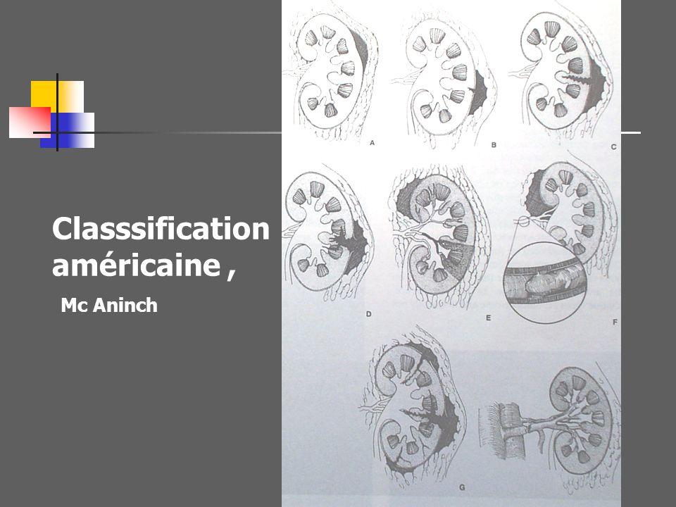 Classsification américaine , Mc Aninch