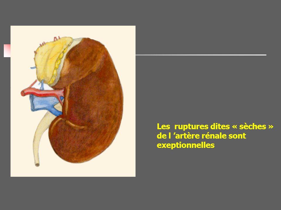Les ruptures dites « sèches » de l 'artère rénale sont exeptionnelles