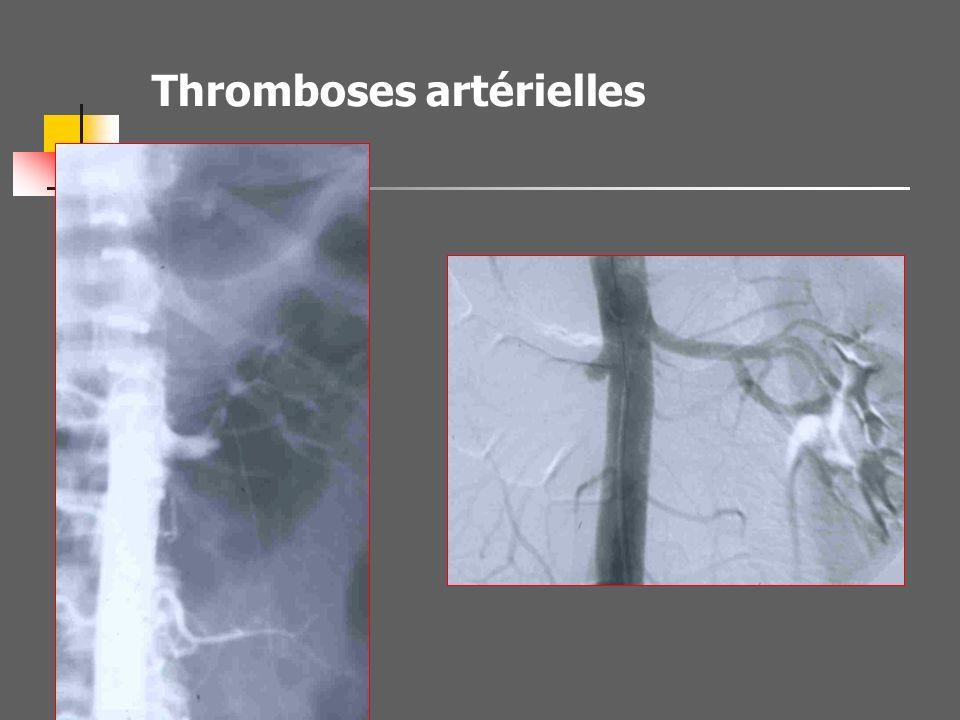 Thromboses artérielles