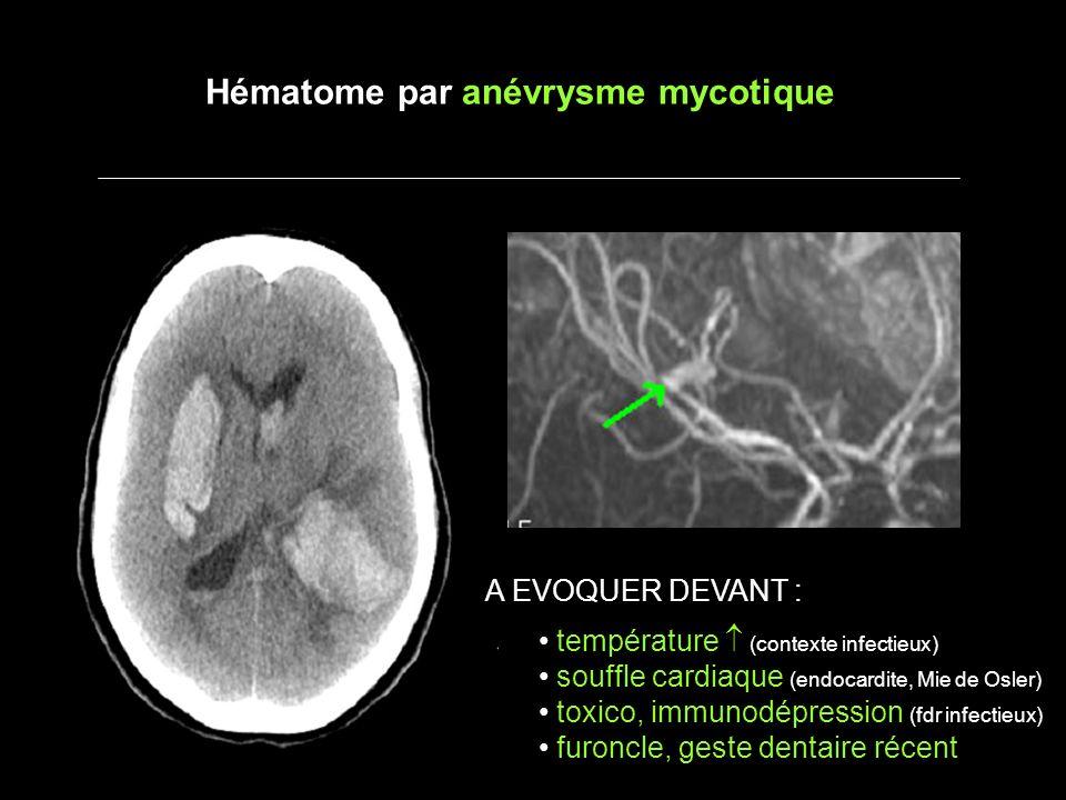 Hématome par anévrysme mycotique