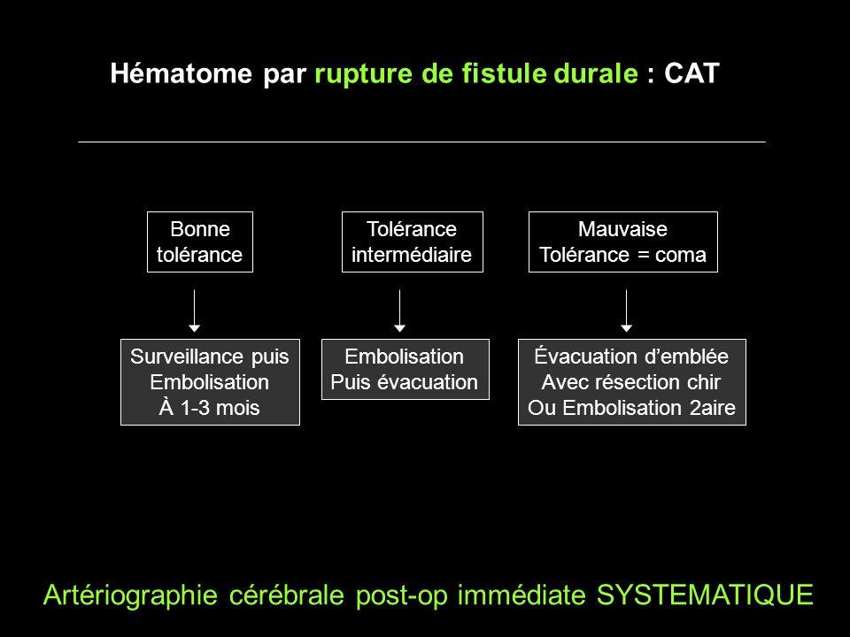 Hématome par rupture de fistule durale : CAT