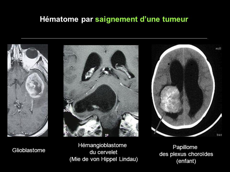 Hématome par saignement d'une tumeur
