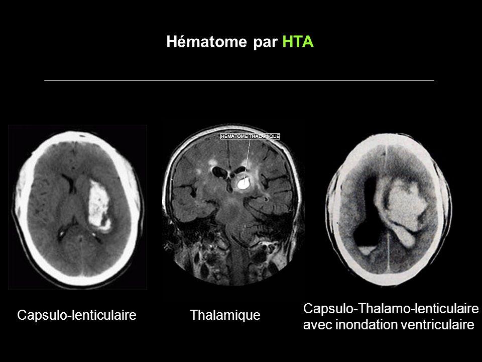 Hématome par HTA Capsulo-Thalamo-lenticulaire