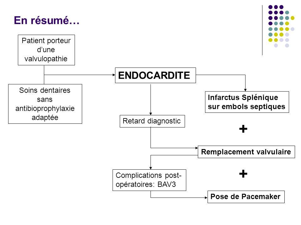 + + En résumé… ENDOCARDITE Patient porteur d'une valvulopathie