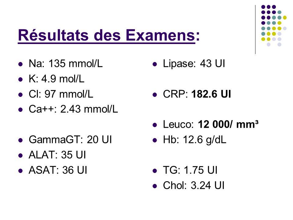 Résultats des Examens: