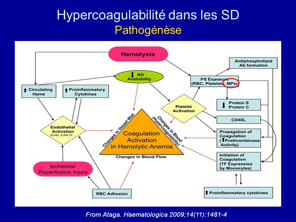 Hypercoagulabilité dans les SD Pathogénèse
