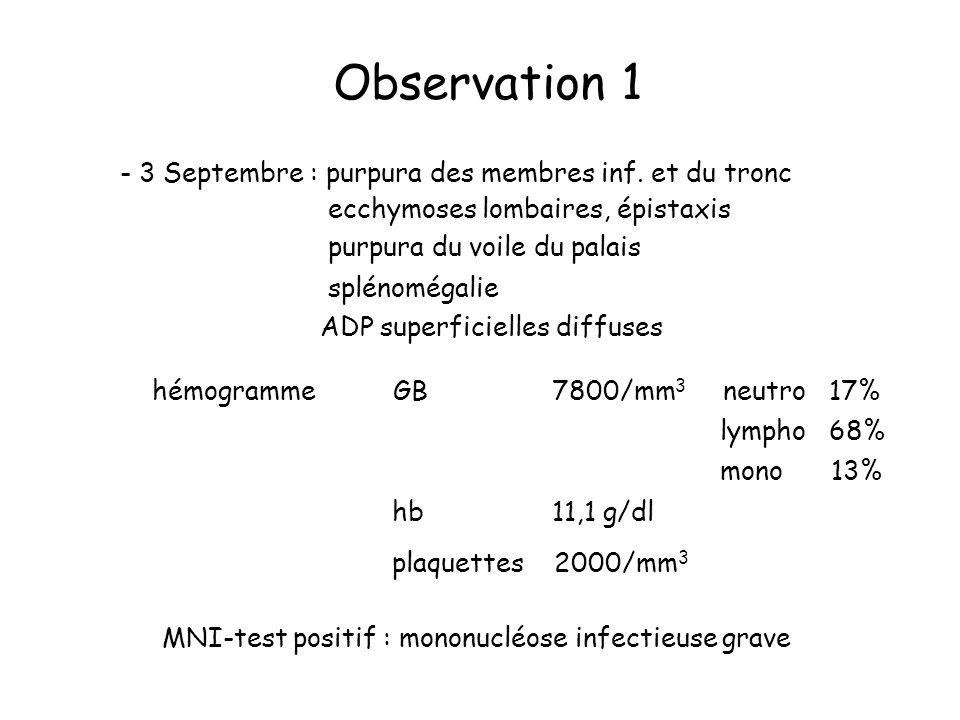 Observation 1 - 3 Septembre : purpura des membres inf. et du tronc