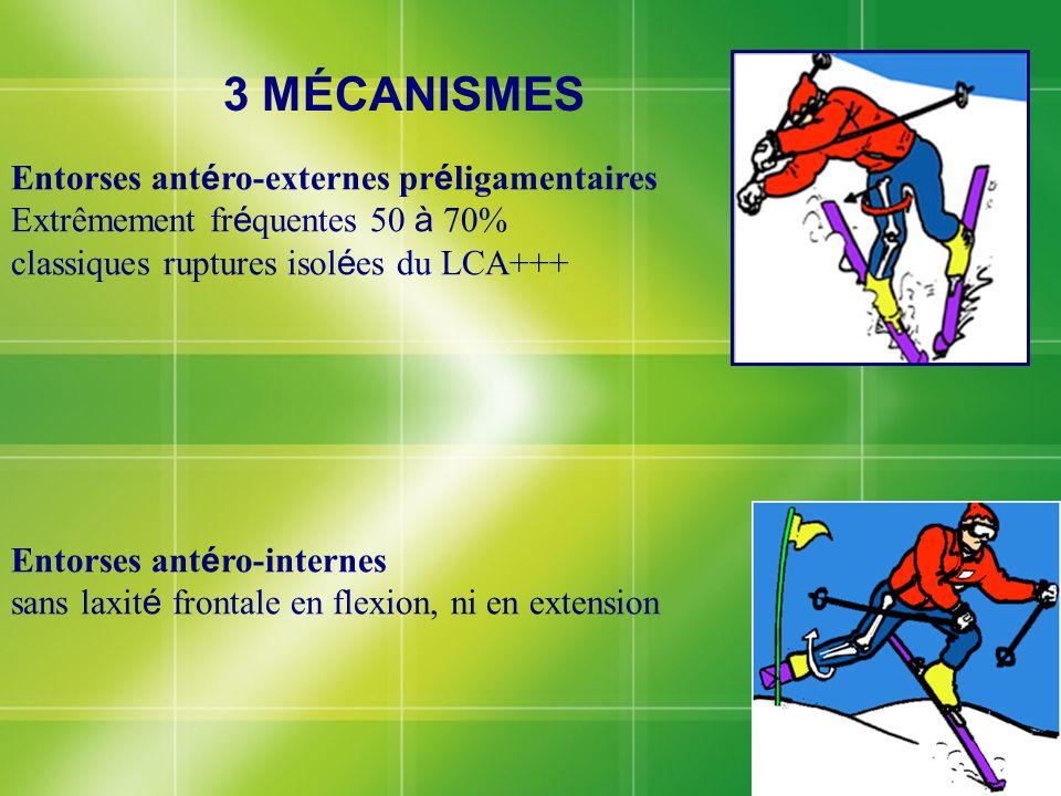 3 MÉCANISMES Entorses antéro-externes préligamentaires