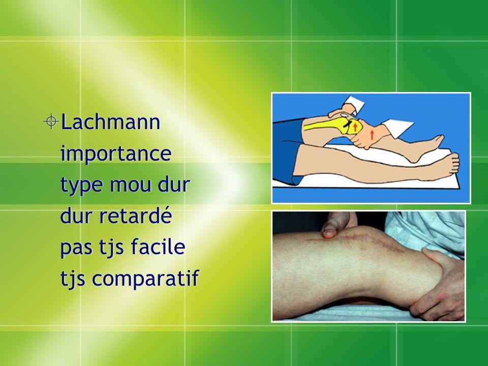 Lachmann importance type mou dur dur retardé pas tjs facile tjs comparatif
