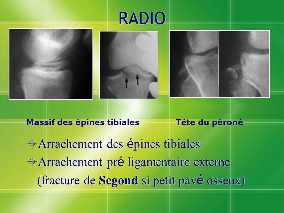 RADIO Arrachement des épines tibiales