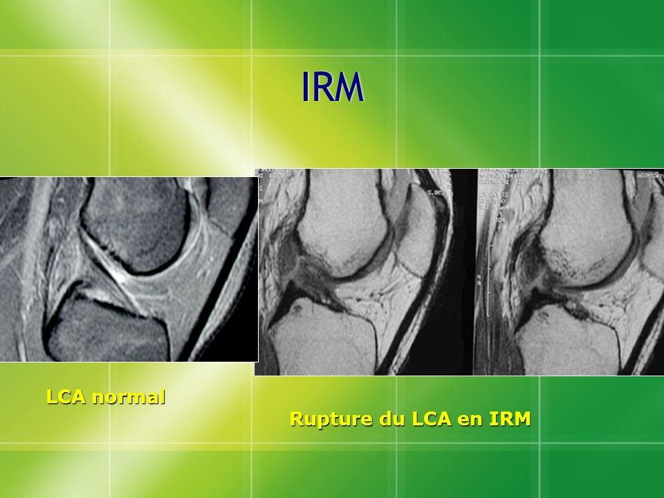 IRM LCA normal Rupture du LCA en IRM