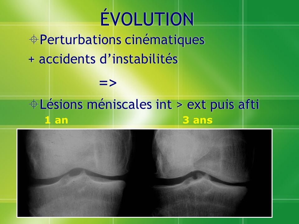 ÉVOLUTION => Perturbations cinématiques + accidents d'instabilités