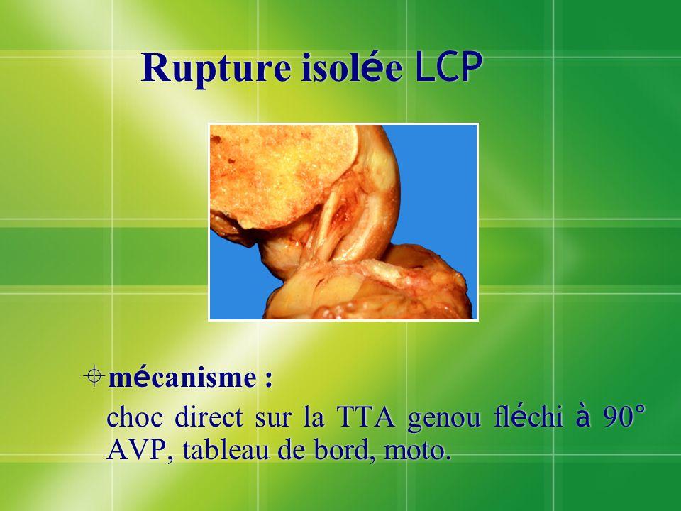 Rupture isolée LCP mécanisme :
