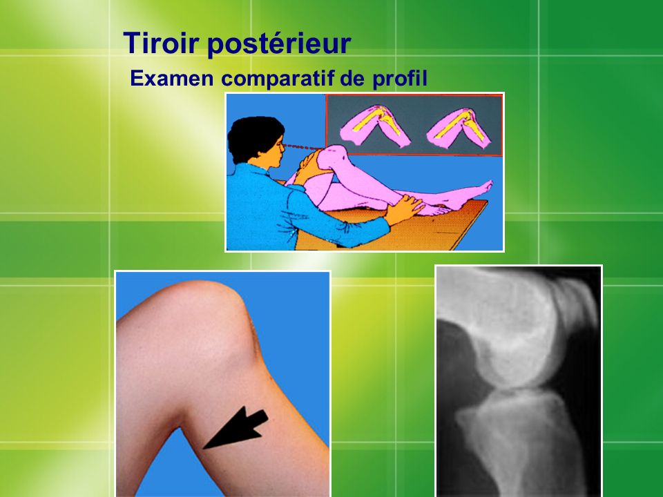 Tiroir postérieur Examen comparatif de profil