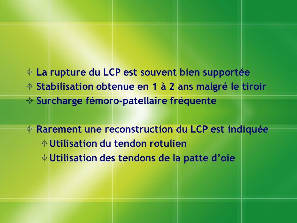 La rupture du LCP est souvent bien supportée