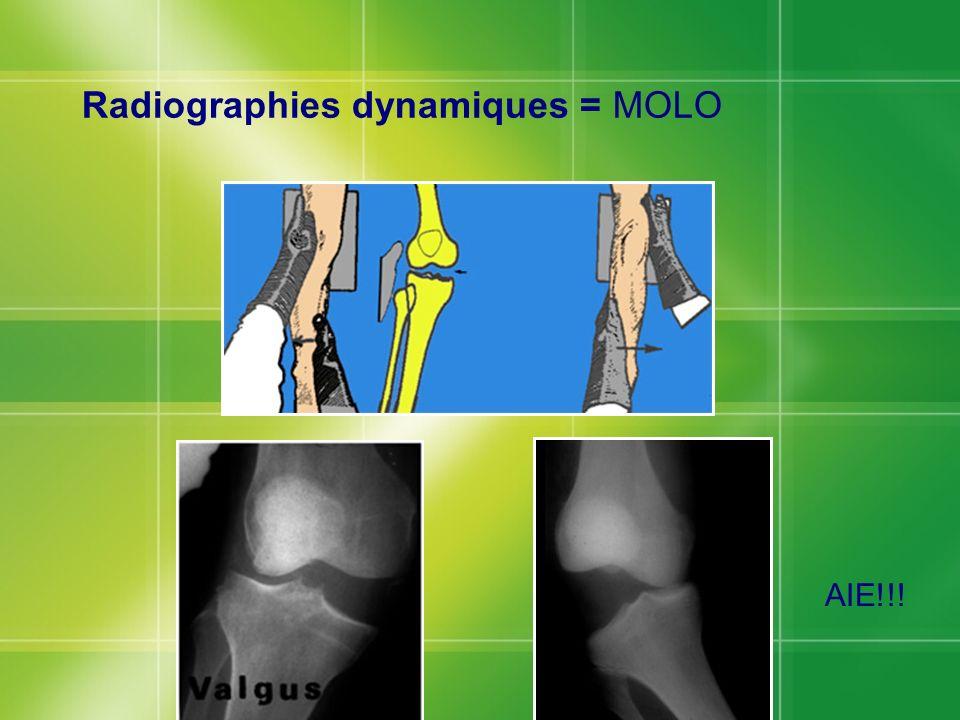 Radiographies dynamiques = MOLO